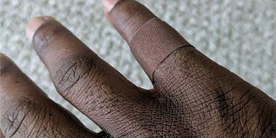 Siyahiler için yara bandı